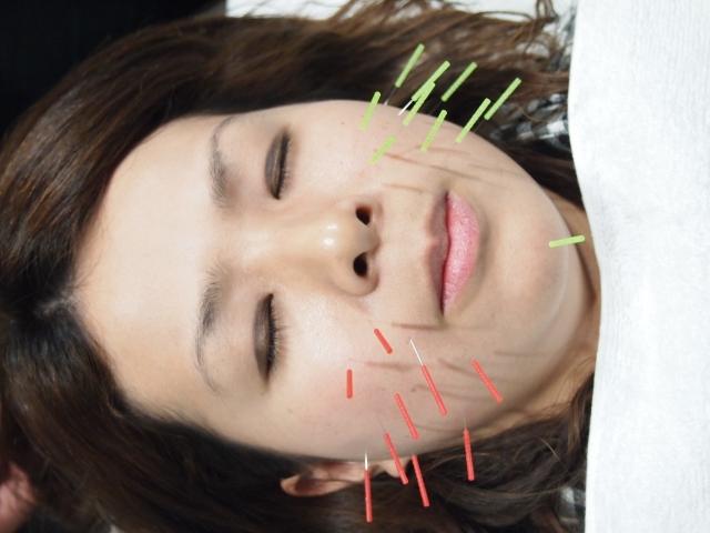 岐阜県岐阜市の美顔鍼(美容鍼灸)はほりべさん家へ