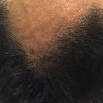 鍼灸育毛レポート1