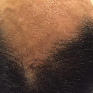 鍼灸育毛レポート2