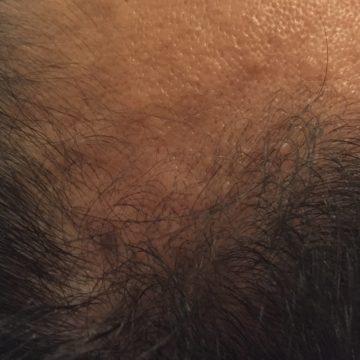 鍼灸育毛レポート3