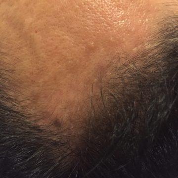 鍼灸育毛レポート4